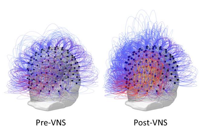 Stymulacja nerwu błędnego śpiączka