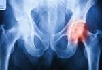 Fot. do artykułu: 'Endoproteza stawu biodrowego - ...'