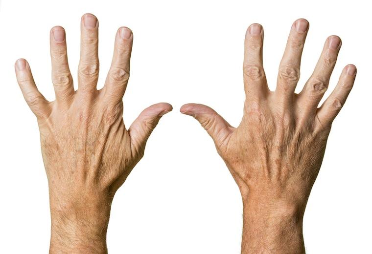 Problem siniejących dłoni