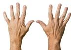 Fot. do artykułu: 'Problem siniejących dłoni'