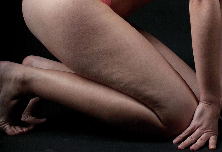 Cellulit u kobiet