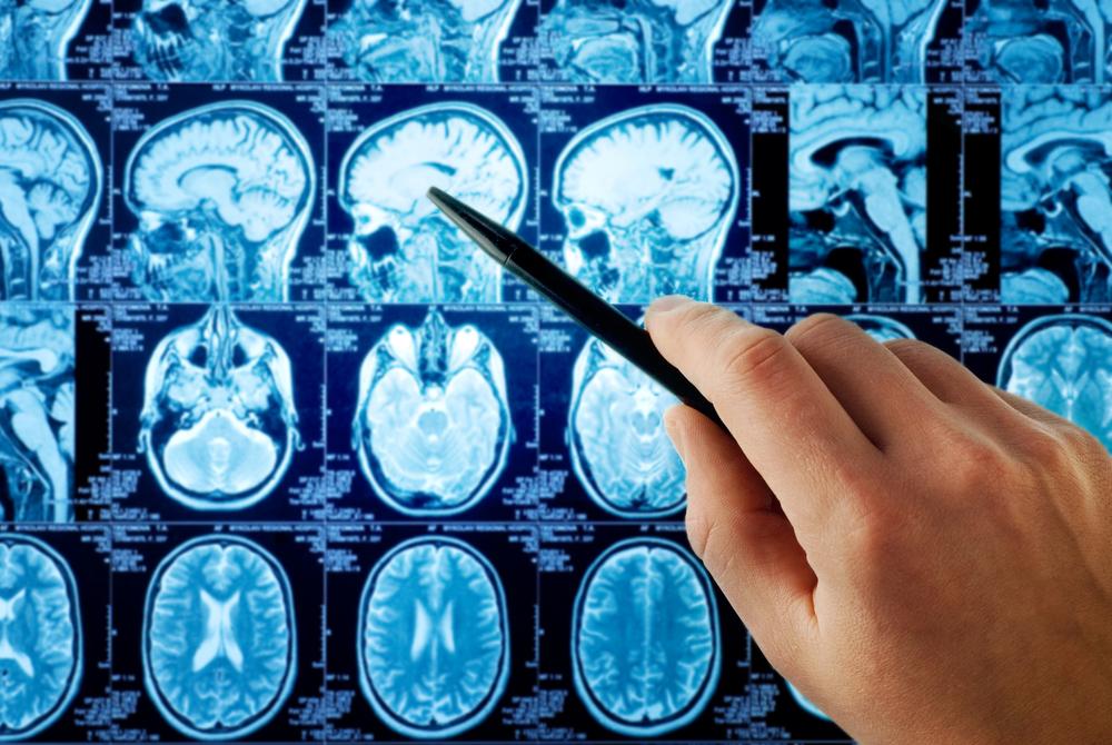 Ta mysz z wielkim mózgiem wyjaśnia, co w naszym życiu zmienia jeden gen
