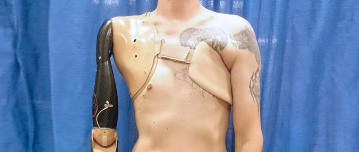 Coraz bliżej protezy doskonałej. Naukowcy opracowali interfejs sterowania kończynami za pomocą myśli