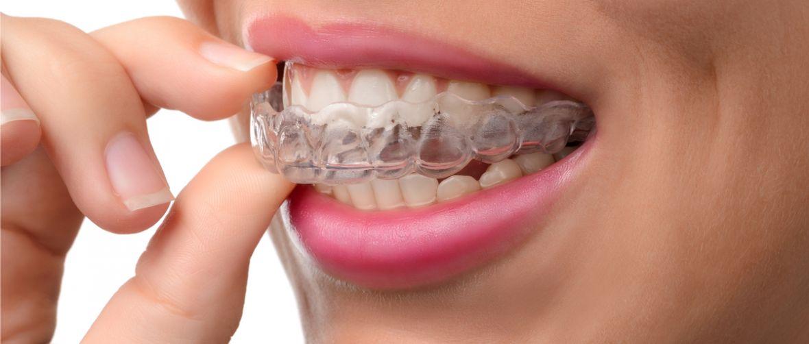 Biedny student nie miał pieniędzy na aparat ortodontyczny, więc… sam go sobie wydrukował