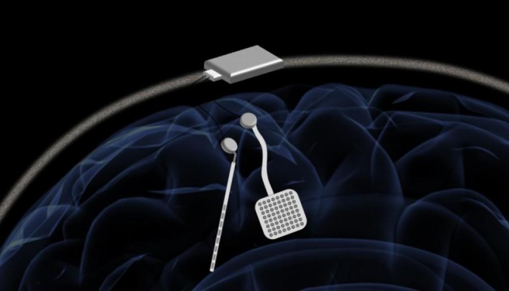 neurostymulacja mozgu