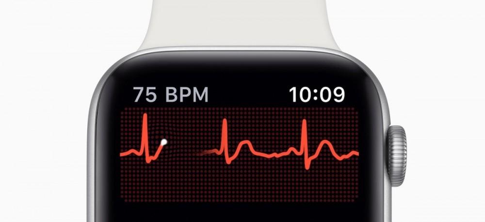apple watch series 4 ekg elektrokardiogram 7