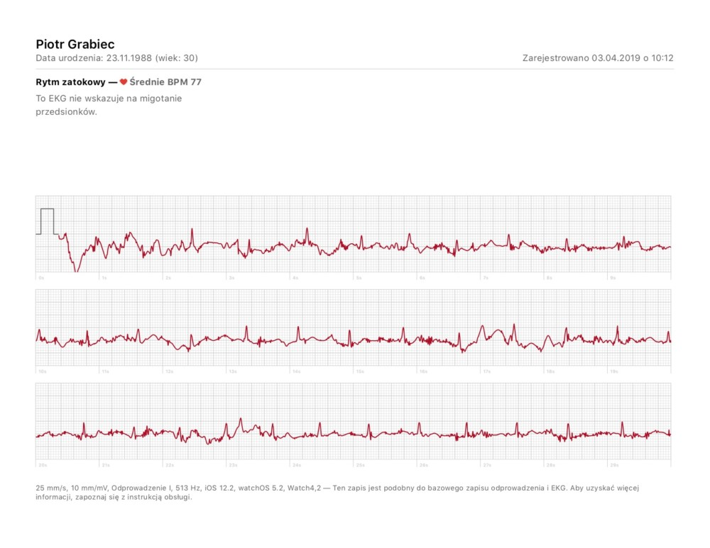 apple watch ekg badanie wyniki porównanie 2