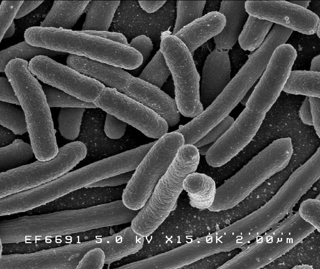 Bakteria New Delhi w polskim szpitalu. Jest odporna na antybiotyki, zamknięto oddział