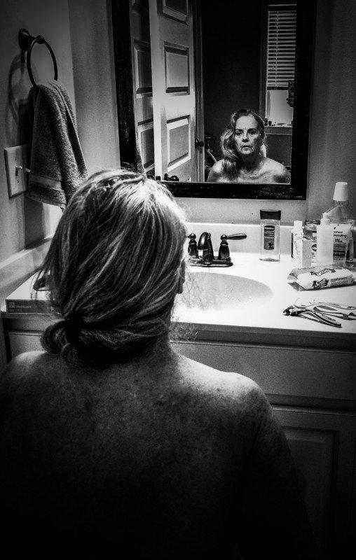 "Fot. Sarah Burgos ""Looking Death in the Face"", Silver Prize Open Award (zdjęcie pojedyncze)"