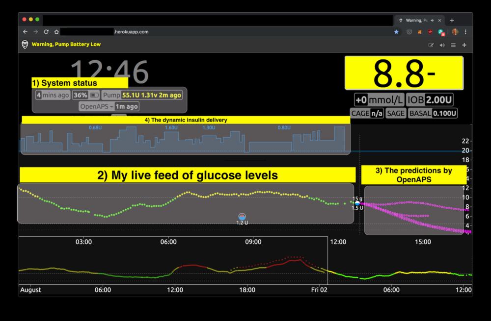 sztuczna-trzustka-cukrzyca-inteligentna-pompa-insulinowa-1