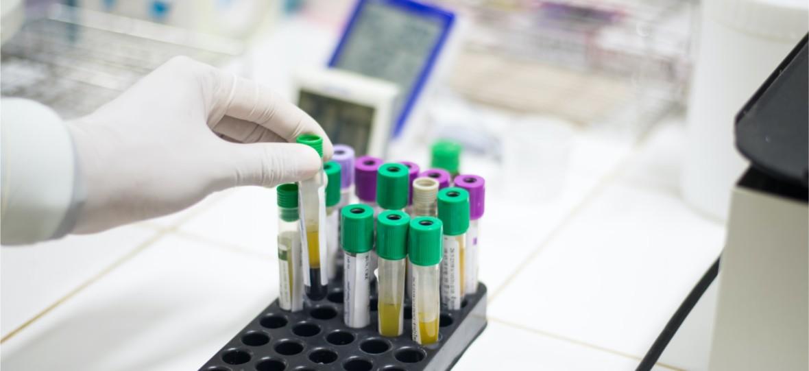 Pierwsza śmiertelna ofiara koronawirusa w Polsce. Lekarze twierdzą, że zarażonych jest o wiele więcej