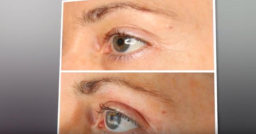 Blefaroplastyka: czyli jak poprawić wygląd oczu